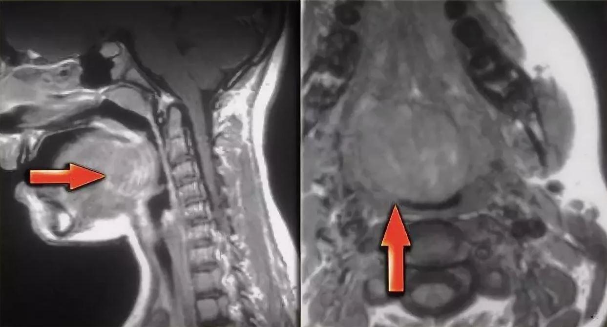 Рак гортани на МРТ снимке