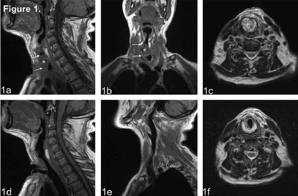 МРТ гортани и шеи