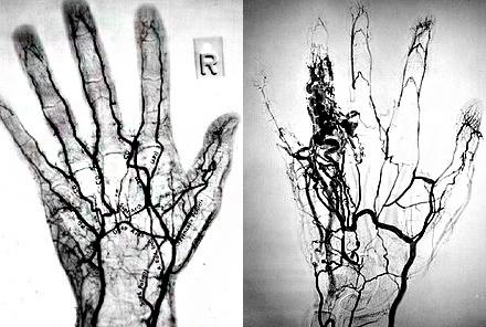 Ангиография кистей рук фото снимки