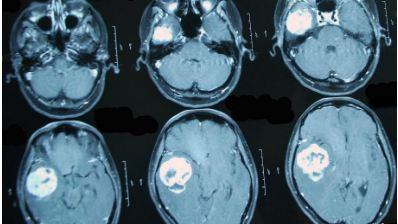 Онкологи считают, что при нарастающих головных болях с прочими необъяснимыми симптомами (обмороками, ухудшением памяти, выпадением полей зрения, давлением на глазные яблоки и др.) в первую очередь следует исключить опухолевую патологию