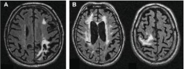 Множественные ишемические очаги при сосудистой деменции на МРТ: отсутствие памяти на недавние события и неадекватное поведение не являются признаками старости, своевременная диагностика деменции и патогенетическая терапия помогут замедлить прогрессирование болезни