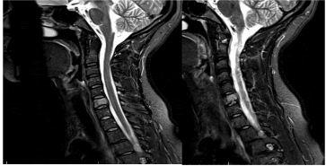 Боль при шейном остеохондрозе изначально возникает в затылке, а по мере прогрессирования патологии распространяется на лобно-височную область головы