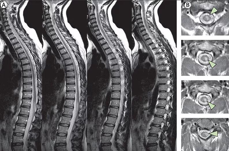 себя они фотки спинного мозга человека чей переходный
