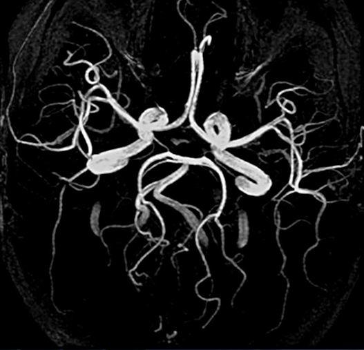 Сосуды головного мозга на МР-томограмме