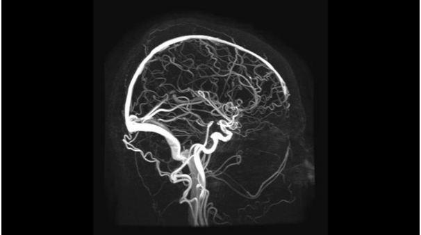 Сосуды головного мозга на МР-сканограмме